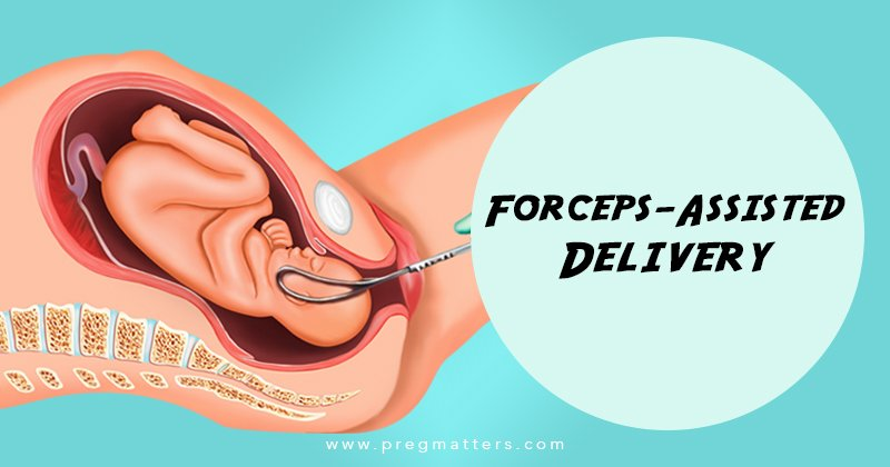 Forceps-Assisted Delivery