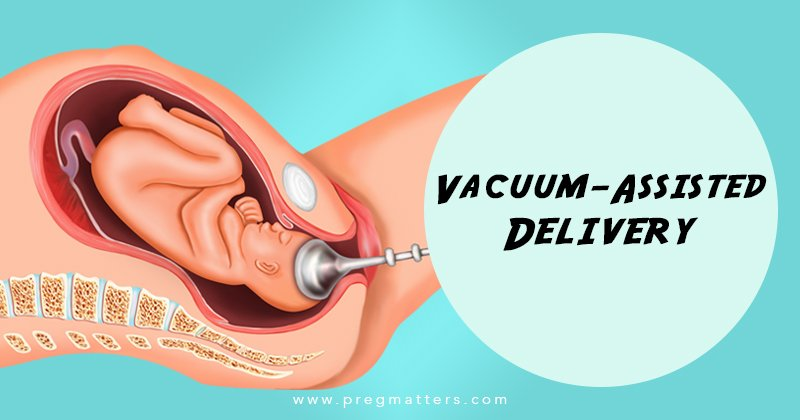 Vacuum-Assisted Delivery
